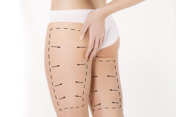liposuccion cirugía de piernas muslos y glúteos doctor lopez burbano