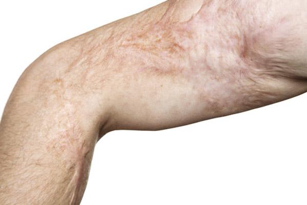 tratamiento de quemaduras por el doctor lopez burbano