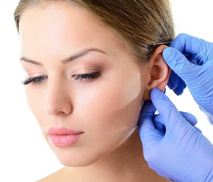 operación orejas