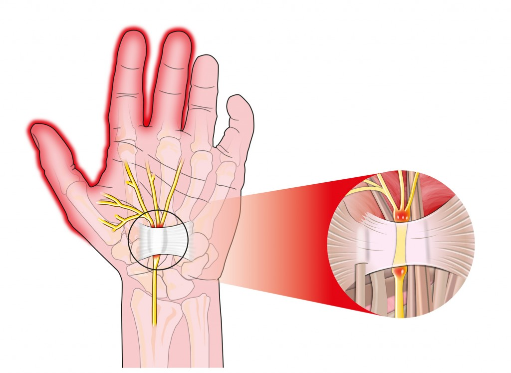 tunel carpiano transverse carpal ligament compressed median nerve