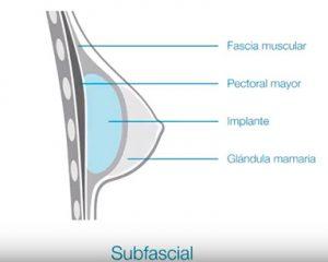 infografía colocación subfascial prótesis mamaria