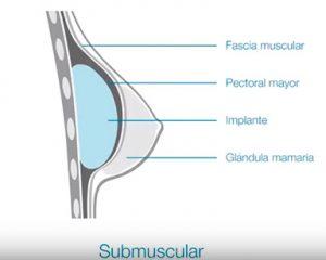 Colocación submuscular de una prótesis mamaria