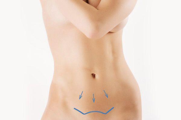 cicatriz mini abdominoplastia