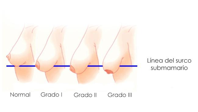 grados ptosis mamaria