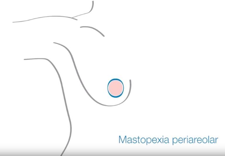 Incisión Mastopexia Periareolar
