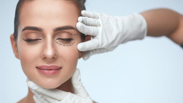 blefaroplastia o cirugía de los párpados