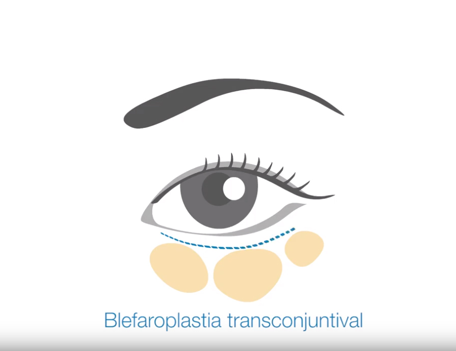 bklefaroplastia transconjuntival